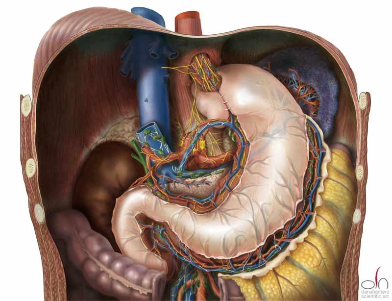 Gastroparesis: Nissen Fundoplication