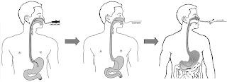 Nội soi dạ dày qua đường mũi?