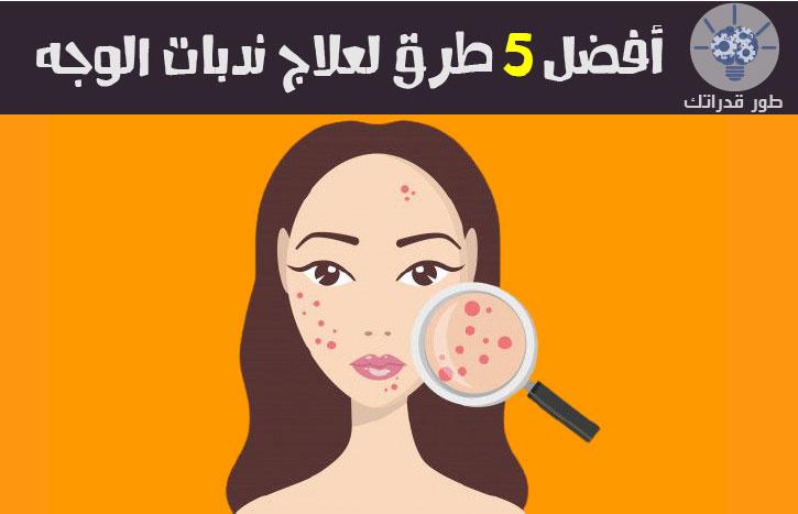 أفضل 5 طرق لعلاج ندبات الوجه