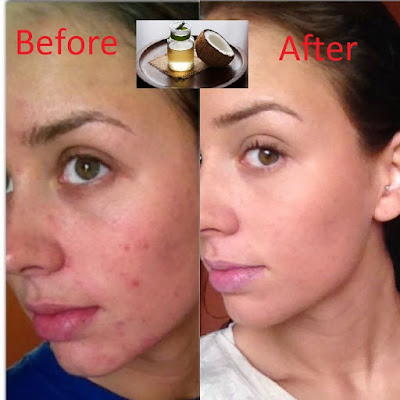 Remove Pimple Scars by coconut oil