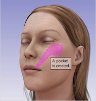 affordable facelift cosmetic surgery