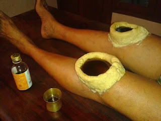 Ayurvedic treatment method