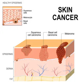 carcinoma skin cancer_ichhori.com