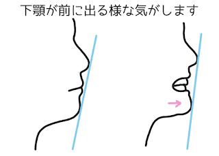 ©さんがつの歯科矯正を始めます 歯科矯正14回目の調整 上の前歯のスキマが気になる