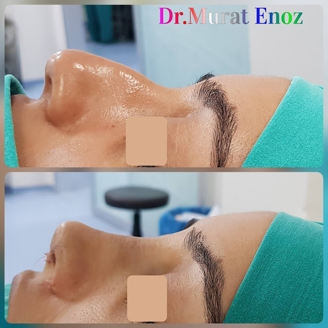 thick skinned nose aesthetic, nose job for women, rhinoplasty operation in istanbul, femal nose job, ethnic rhinoplasty, nose job for thick skinned nose, rhinoplasty in istanbul