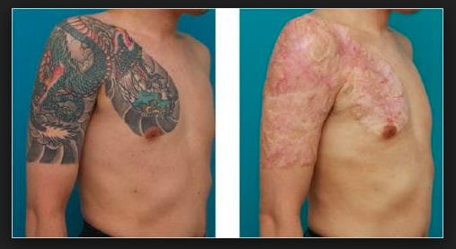 Tattoo-removal procedures leave clients ...youtube.com