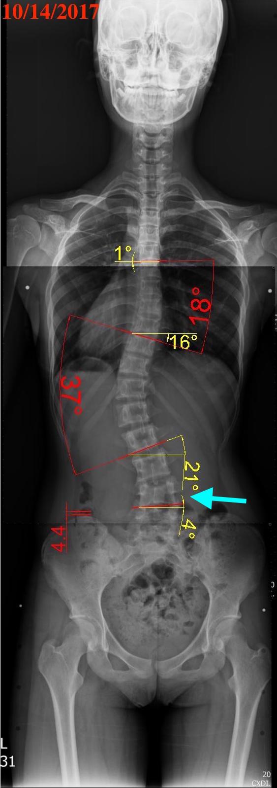 解決骨盆歪斜可否連帶矯正腰椎側彎? - 閻曉華脊骨神經醫學網