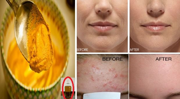 SHE APPLIED THIS TURMERIC MASK 2 HOURS BEFORE HER WEDDING DAY. WHAT HAPPENED LATER UNBELIEVABLE