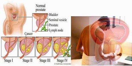 cara-mengobati-radang-prostat