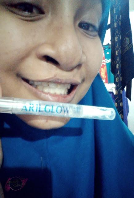 Tips Mudah Putihkan Gigi