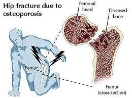 fractura de col femural neoperata