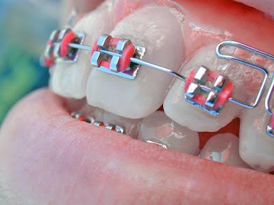 Ispravljanje zuba ortodoncija Nešković Dent Novi Sad