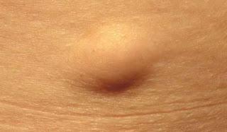 الورم الشحمي Lipoma