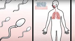 الحياة بعد استئصال البروستاتا.. الضعف والعجز الجنسي وخروج البول