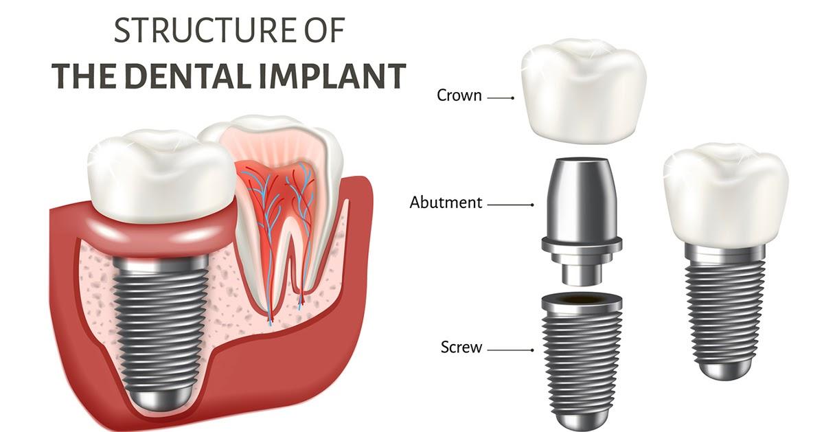 costo implante dental españa