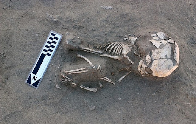 Earliest case of scurvy found in ancient Egypt