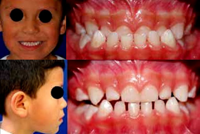 CLINICAL CASE: Quick Correction of a Skeletal Class III Maloclussion in Primary Dentition with Face Mask Plus Rapid Maxillary Expansion Therapy