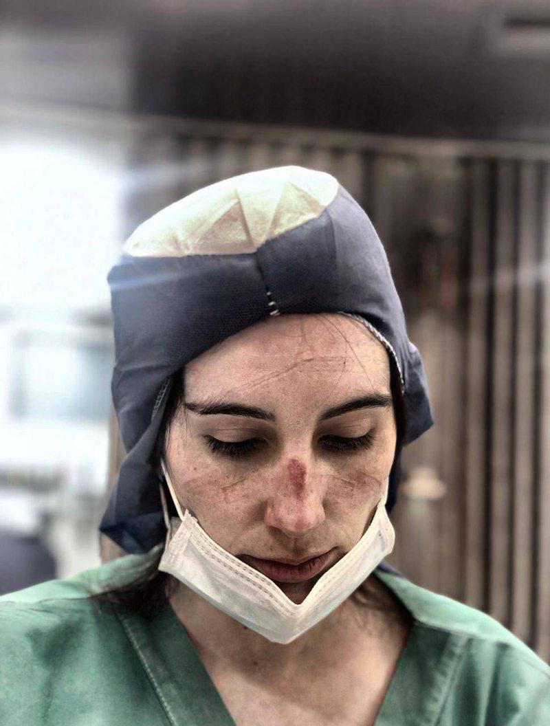 Mascarilla N95 dejó úlcera por presión en rostro de la urgencióloga