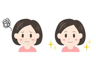 العناية الذاتية لتقليل أثر حبوب وبثور الوجه.