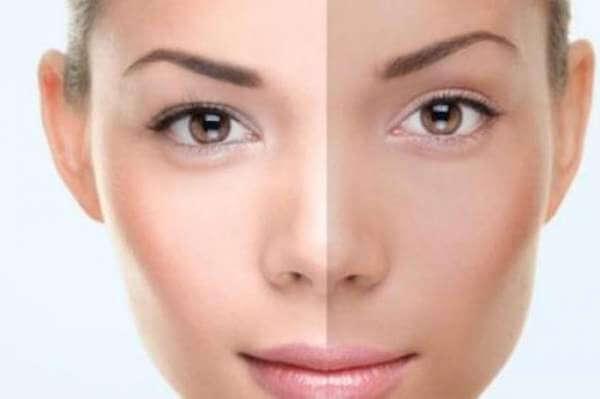 5 Cara Cepat Memutihkan Wajah Secara Alami
