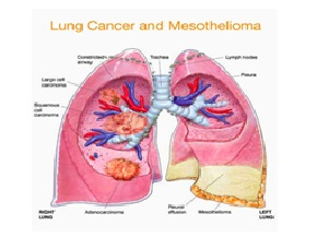 Mesothelioma is Caused by Exposure