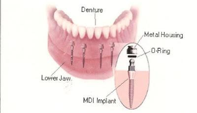 Trường hợp cắm ghép 4 mini implant