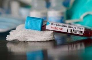 pasien positif COVID-19 berada di setidaknya 8 provinsi