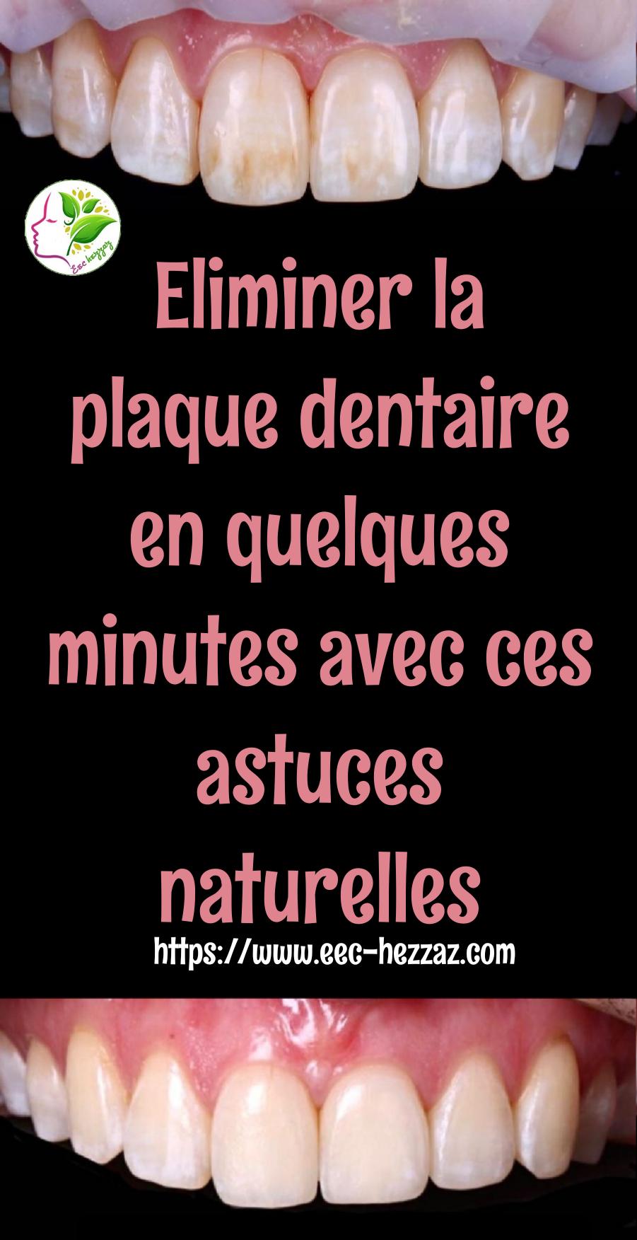 Eliminer la plaque dentaire en quelques minutes avec ces astuces naturelles