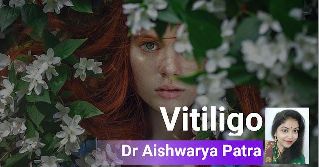 VITILIGO- A SKIN DISEASE, NOT A STIGMA