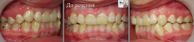 Прикус пациента до ортодонтического  лечения