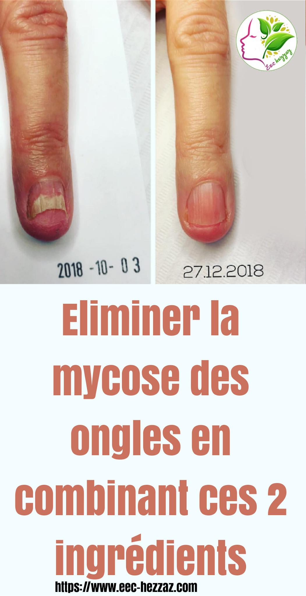 Eliminer la mycose des ongles en combinant ces 2 ingrédients