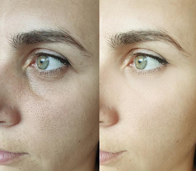 3 masques anti-rides qui augmentent la production de collagène : une peau éclatante et belle