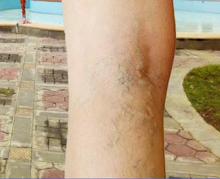 Varises ialah pelebaran pembuluh darah vena yang menyebabkan munculnya vena yang menonjo Mengobati varises
