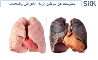 معلومات عن سرطان الرئة  الأعراض والعلامات