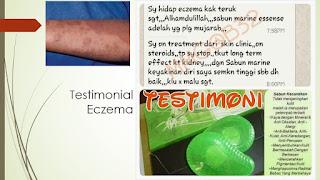 Testimoni Eczema pulih