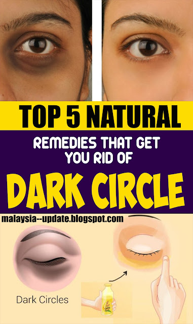 5 Best Natural Remedies That Get You Rid of Dark Circles