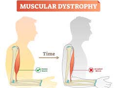 "Weakness in the muscles, which is making hard to respire because of medical state known as ""muscular dystrophy"""