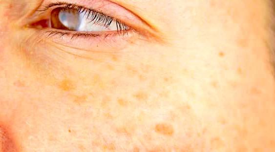 تصبغات الجلد-التخلص من تصبغات الجلد skin pigmentation