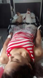Jovem de Igarapé Grande considerada morta após grave acidente volta a respirar e surpreende a todos