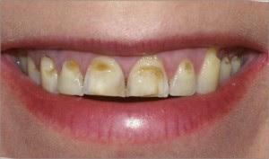 kahverengi lekeler neden olur?,dişlerde siyah lekeler neden olur?, Dişlerdeki kahverengi lekeler nasıl geçer? Dişlerdeki siyah lekeler nasıl geçer? Diş lekesi tedavisi nasıl olur?, Evde diş lekesini nasıl geçer? Diş tartarı neden olur ?Diş tartarı nasıl geçer ? Dişleri lekeleyen besinler nelerdir?,Dişlerin lekelenmesini önleyen besinler nelerdir?