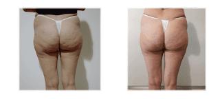 Velashape Plus - super zabieg na cellulit