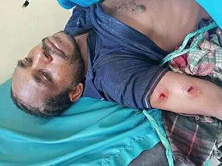 Breaking News: HARI INI POLISI MENEMBAK SATU MAHASISWA UNCEN DAN LAINYA LUKA-LUKA