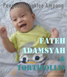 Fateh Adamsyah Dan Torticollis