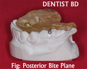 posterior bite plane Mouth Guards and Bite Planes |  PPT