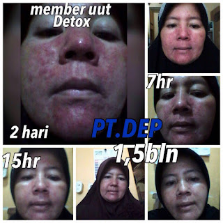 2 Testimoni sabun amoorea di Belitung