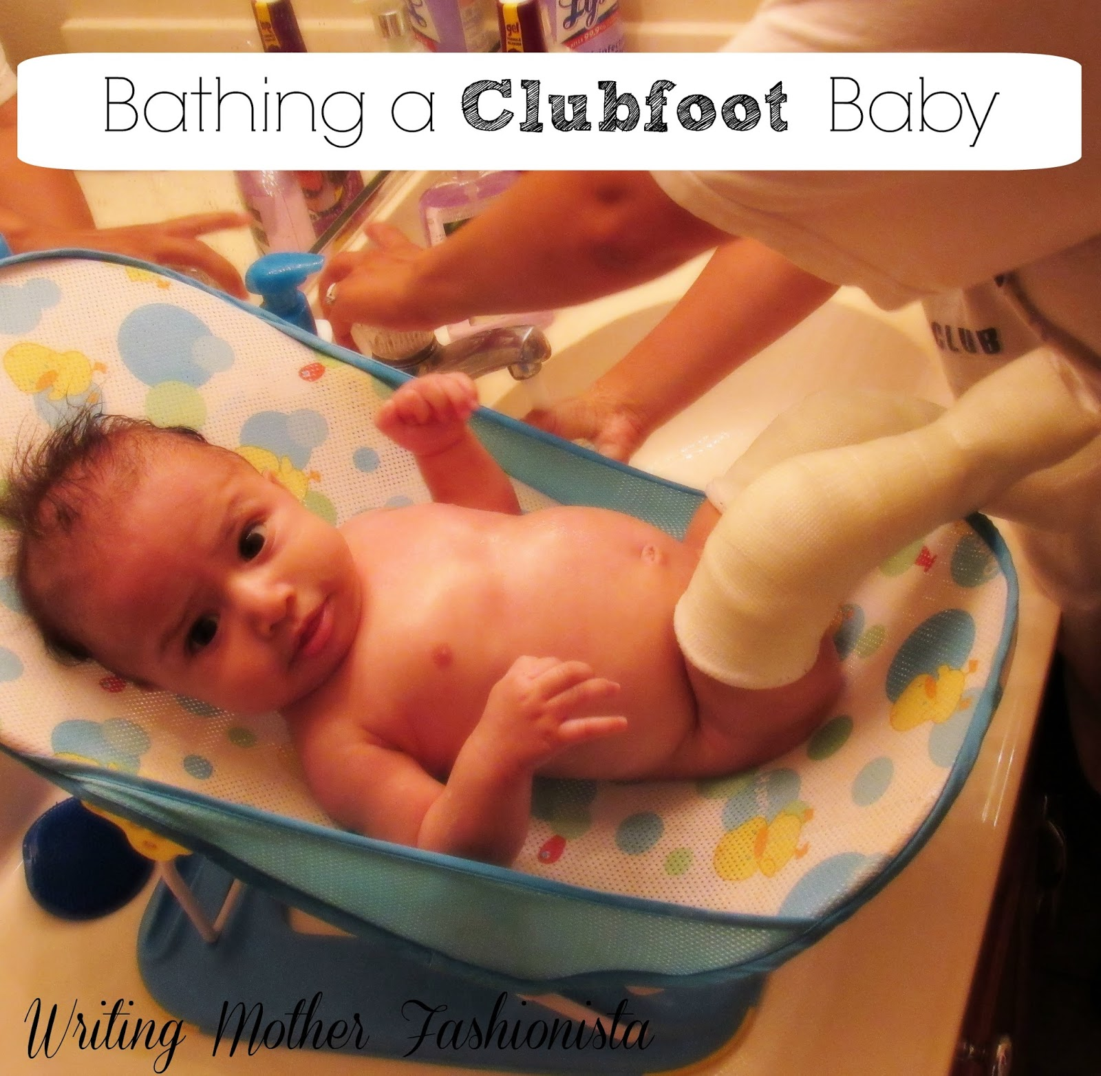 Writing Mother Fashionista: Bathing A Clubfoot Baby