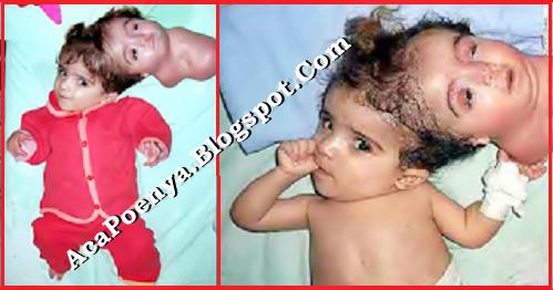 Bayi Berkepala Dua