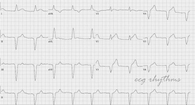 ECG Rhythms: MI in Paced Rhythm