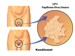 Kutil Kelamin HPV