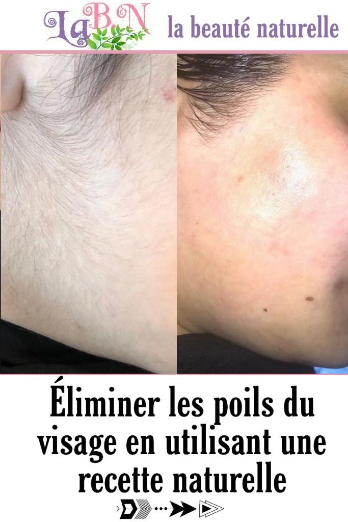 Éliminer les poils du visage en utilisant une recette naturelle